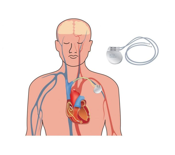 dual chamber pacemakers