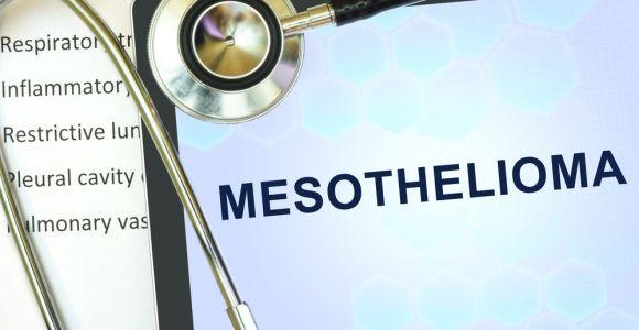 10 Symptoms of Mesothelioma