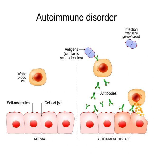 immune system disorders