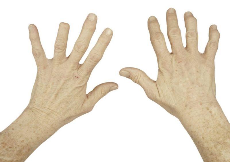 fingers bones