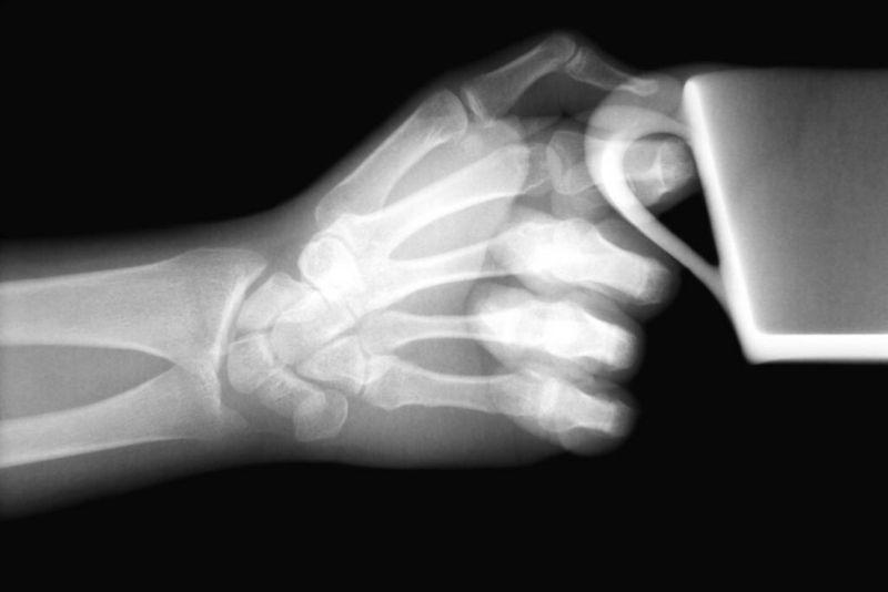 x-ray distal bones