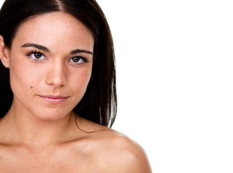moles birthmark
