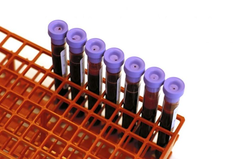 test health screening blood test