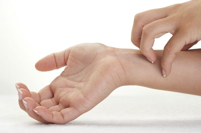 Person scratching wrist