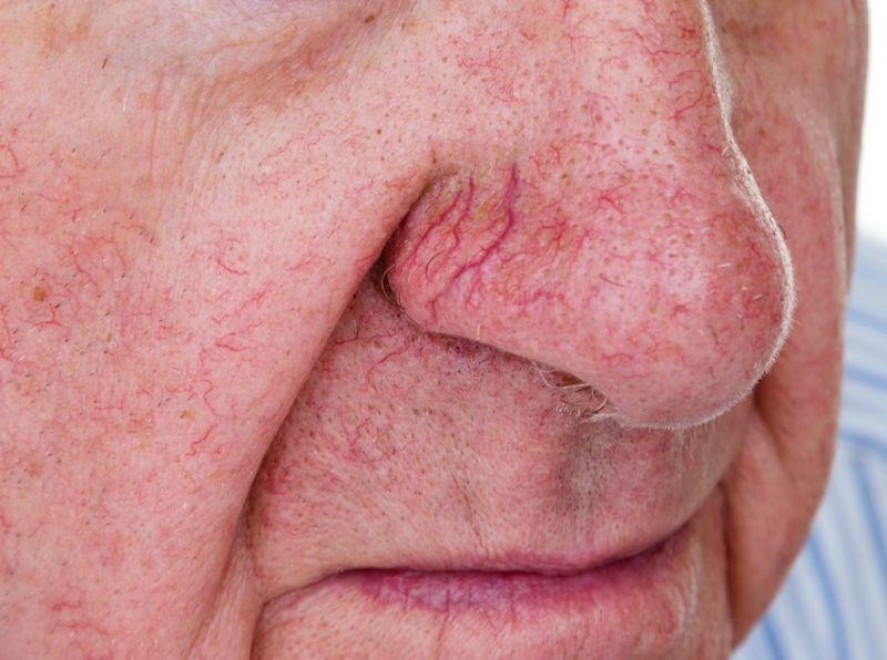 Spider veins on man's nose