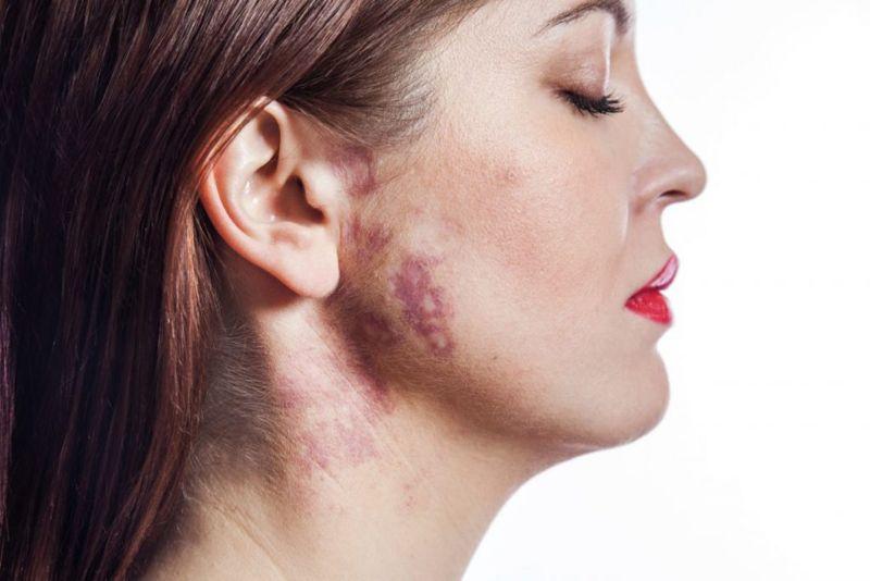 wine stain birthmarks