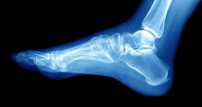 types of feet bone