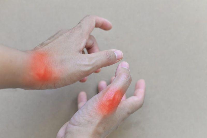 arthritis synovial fluid