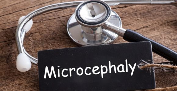 What is Microcephaly?