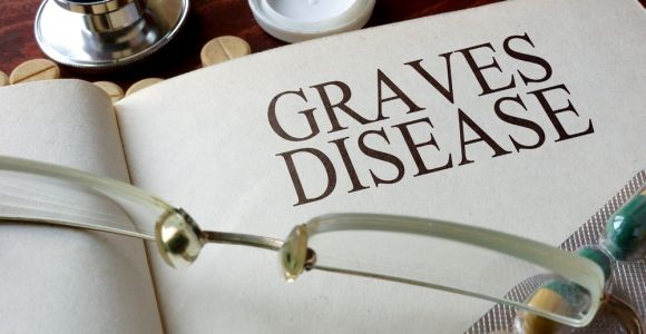 12 Important Symptoms of Graves Disease