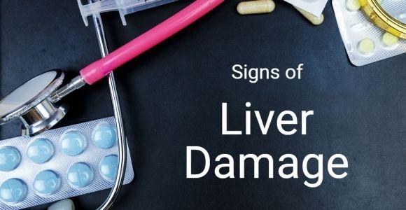 10 Signs of Liver Damage