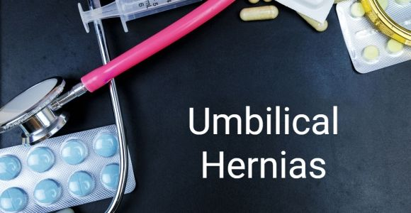 Facts About Umbilical Hernias
