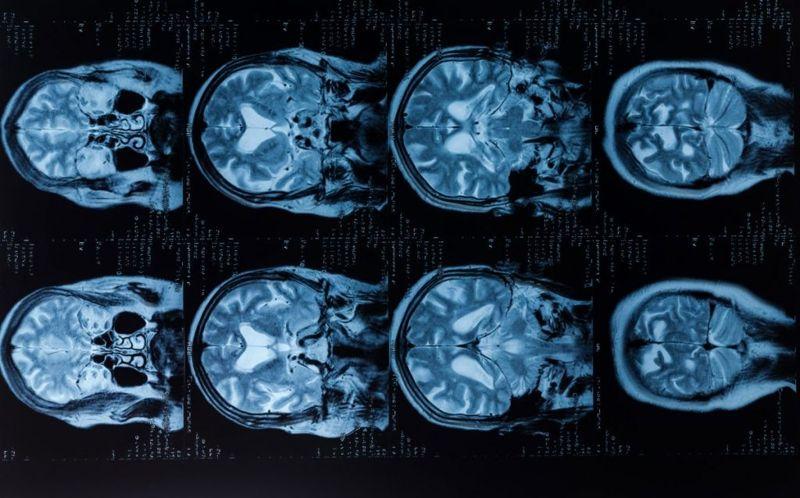 brain Fulminant hepatitis