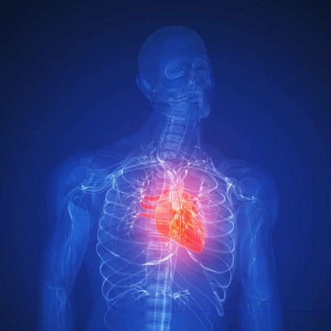 all about Cardiac cachexia