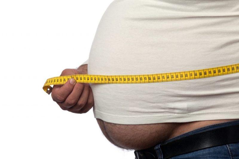 obesity Overnutrition