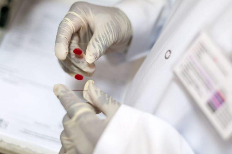 blood Fulminant hepatitis