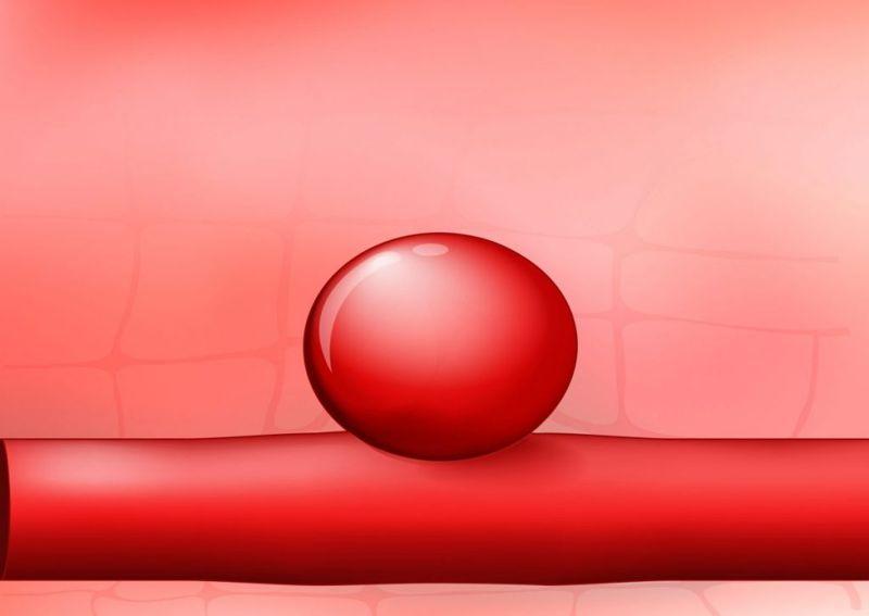 aneurysm Internal bleeding