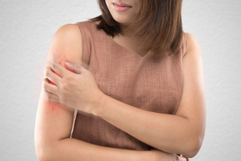 itchy rash