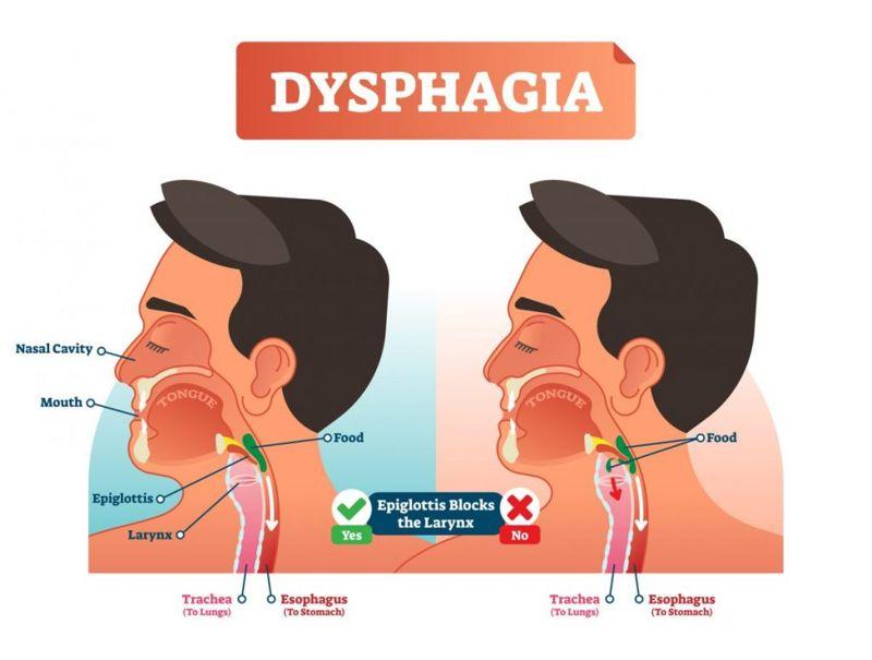 complications dysarthria