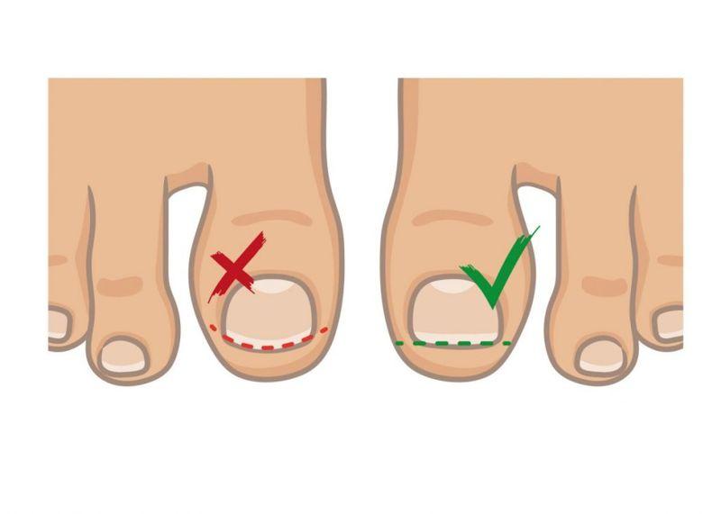 ingrown toenail preventing