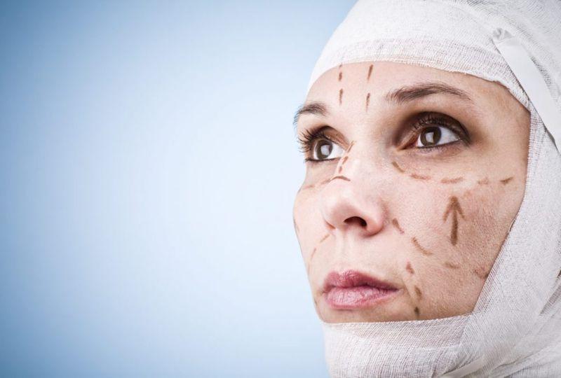 face lift plastic surgery