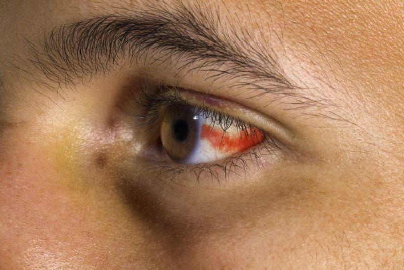eyes subconjunctival hemorrhage