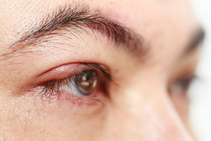 thick Eye discharge