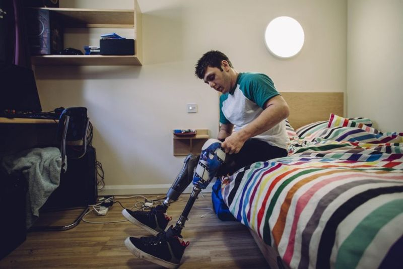 prosthetics modern attach
