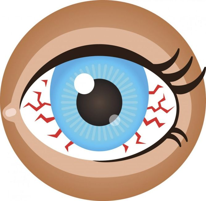 pink eye scratched cornea