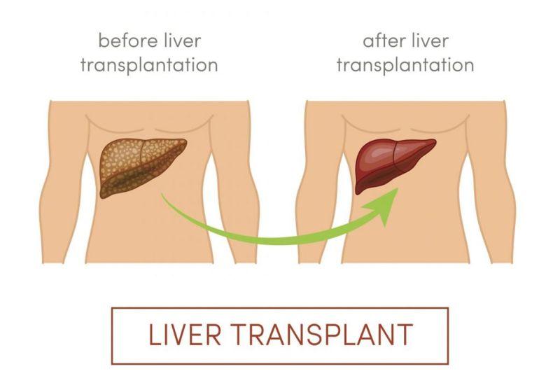 treatment liver transplant Maple syrup urine disease