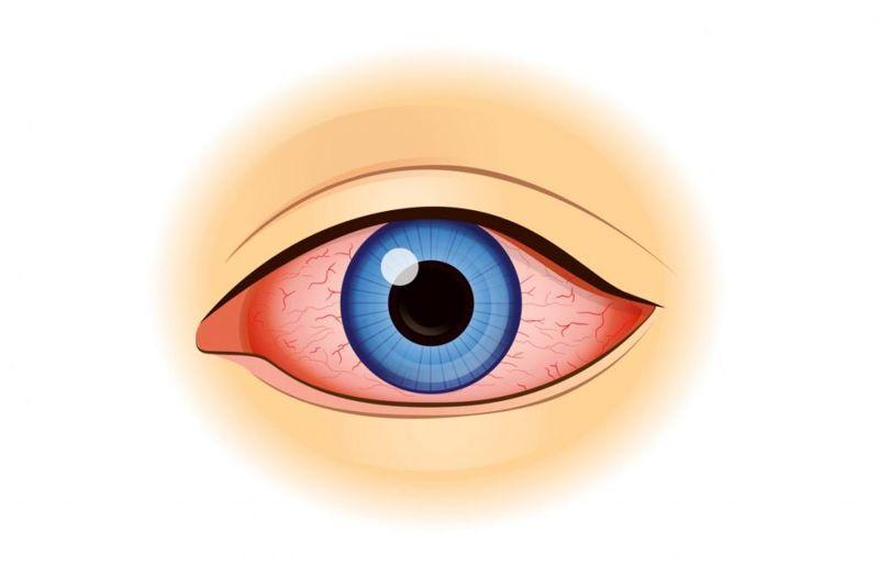 symptoms of scratched cornea
