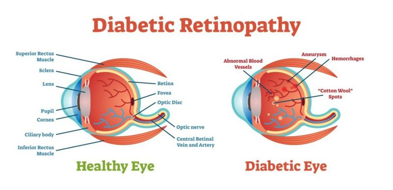 complications Diabetic nephropathy