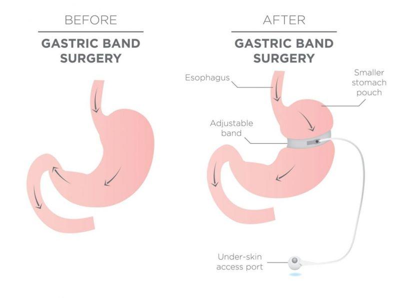 clear liquid diet surgery
