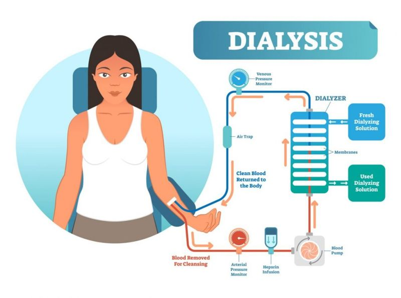 Dialysis treatment diagram