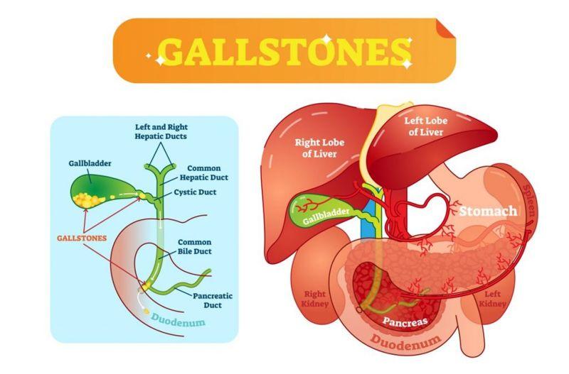 Gallstones water bile