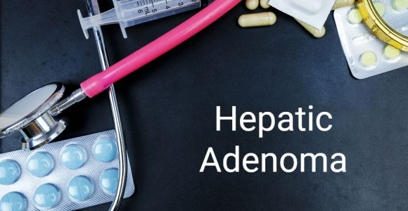 What is a Hepatic Adenoma?