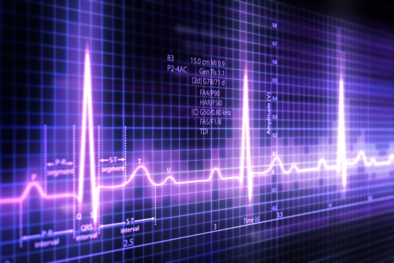EKG Bundle Branch Block