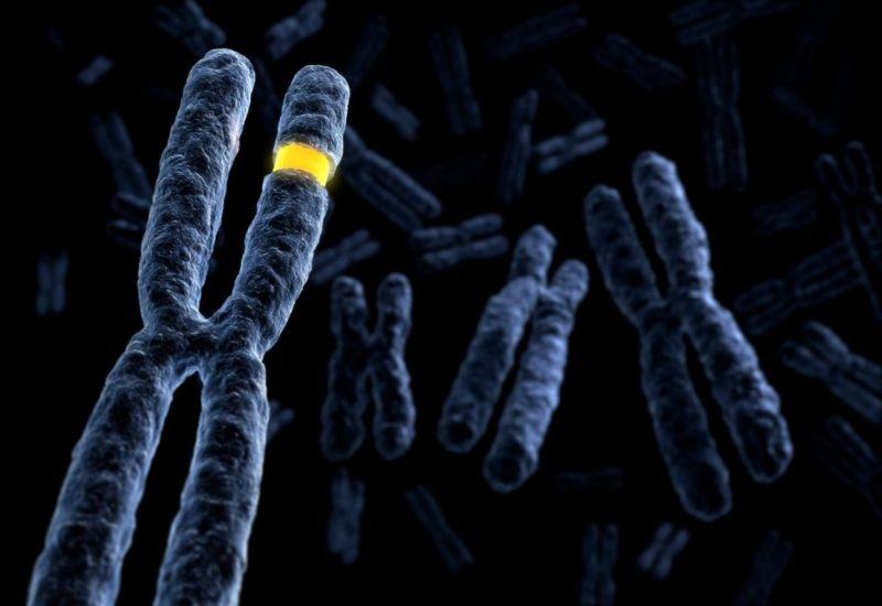 sex chromosomes trisomy