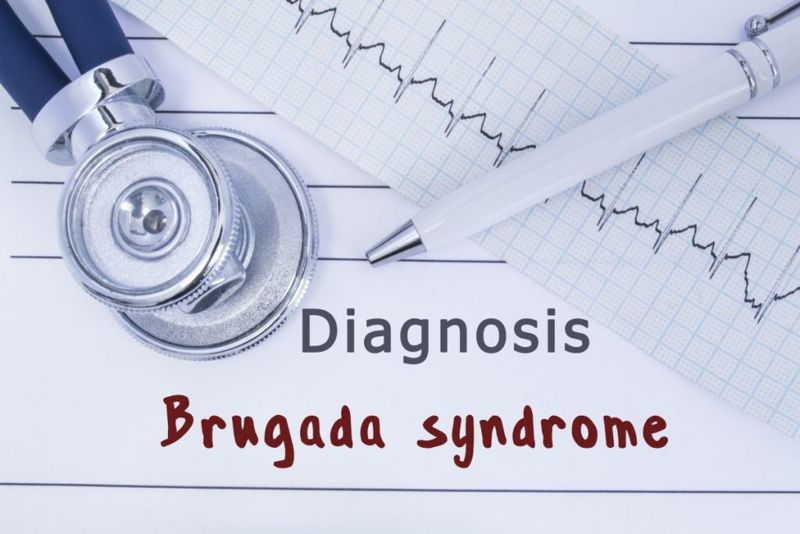 what is Brugada syndrome