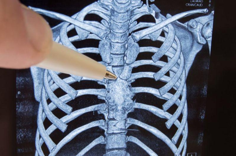 thmectomy thymoma