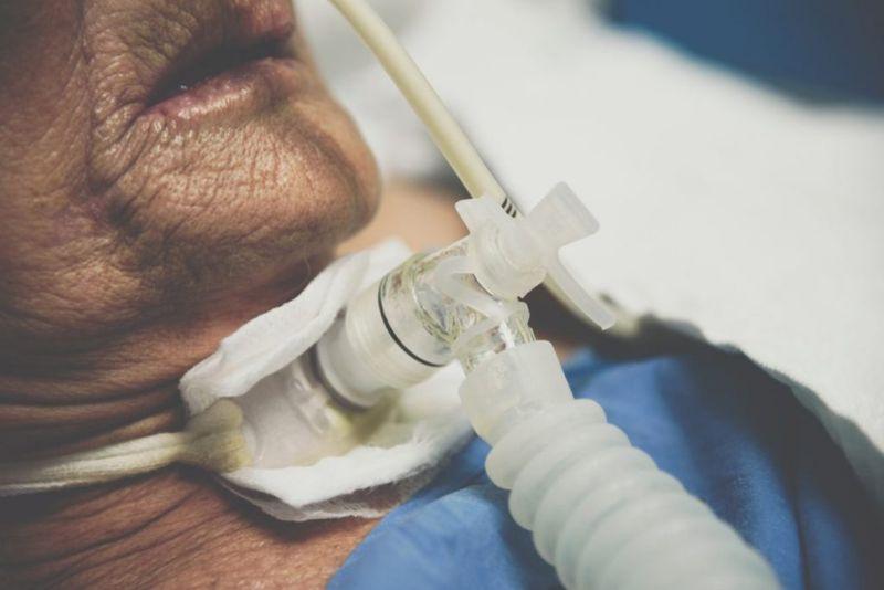 tracheostomy open surgery throat