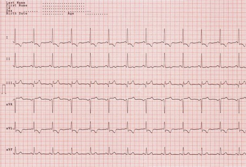 EKG Waves Tracings QRS