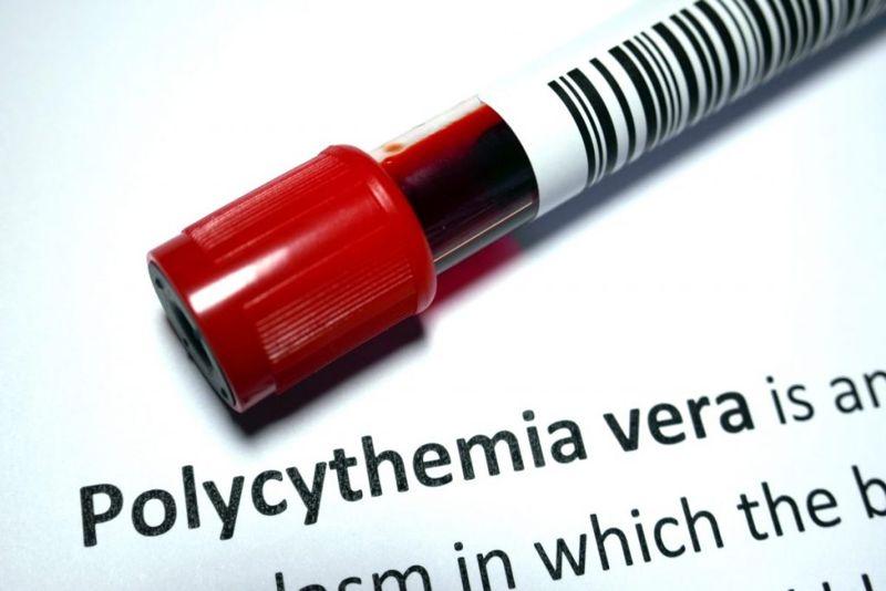 polycythemia Budd-Chiari syndrome