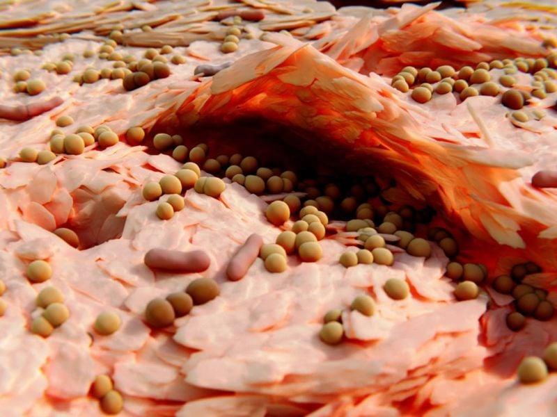Infectious Angular Cheilitis