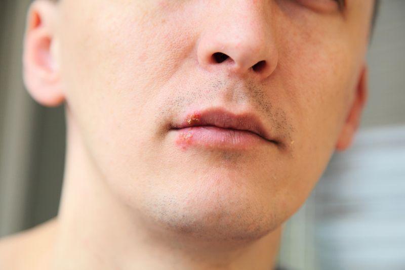 sore lips