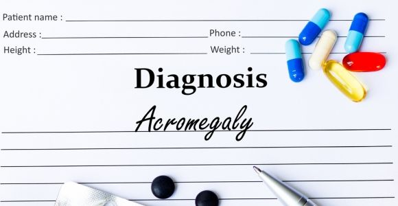 What is Acromegaly?