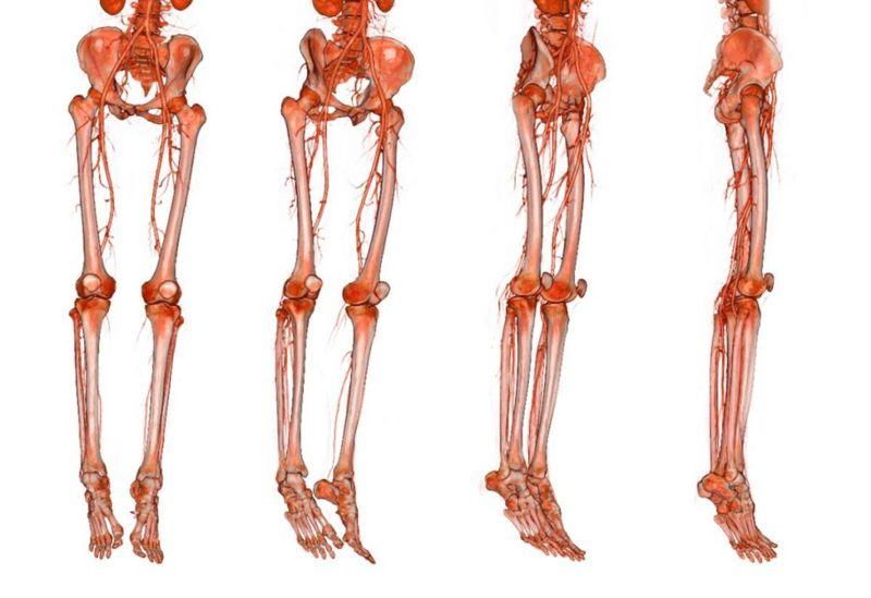 profunda-femoris deep-femoral-artery
