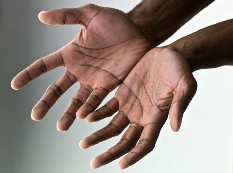 Wrist Hand Blood Supply