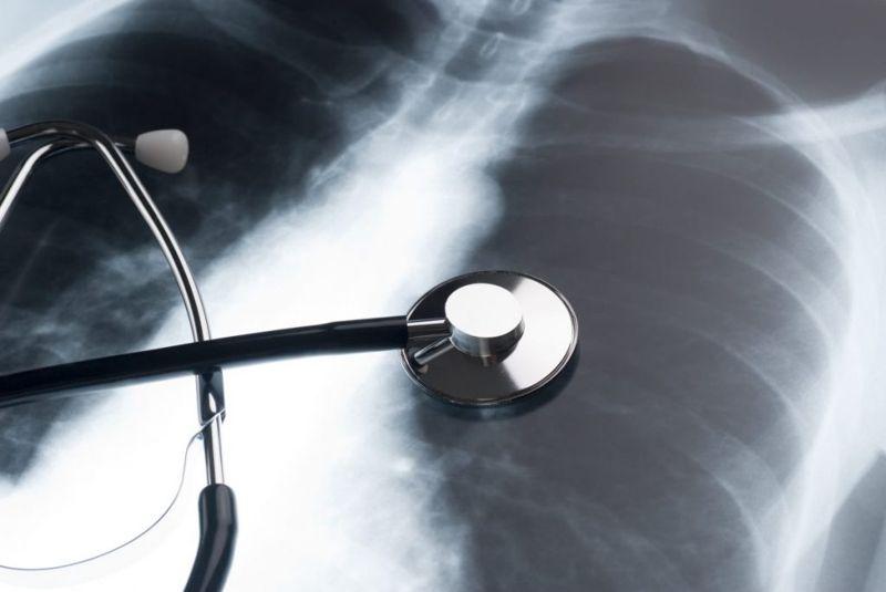 cor pulmonale COPD