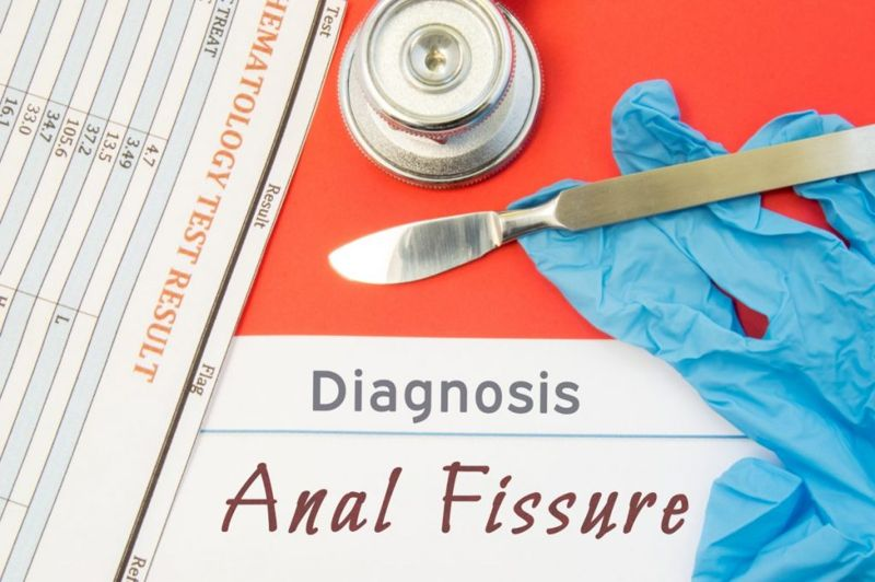 anal fissures